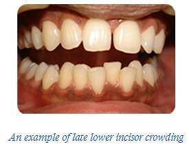 Incisor crowding